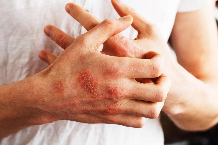Does TCM Cure Eczema?