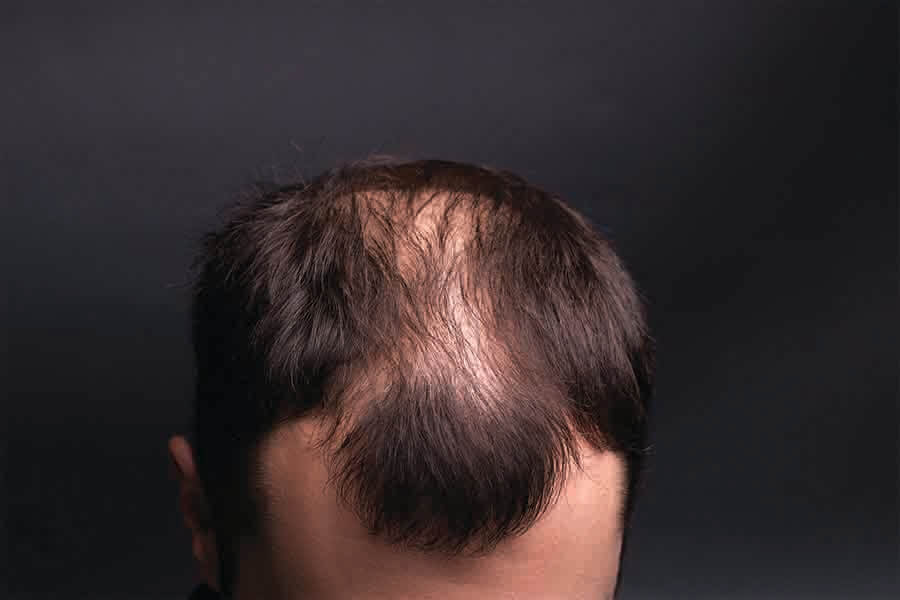 close up of man suffering from sudden hair loss